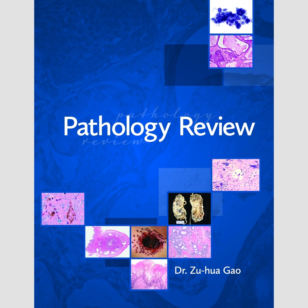 patho review Essential for course review and nclex review, this resource is a complete, concentrated outline of pathophysiology each chapter contains objectives, pre- and post-tests with rationales, vocabulary review, practice to pass exercises, critical thinking case studies, as well as nclex alerts.